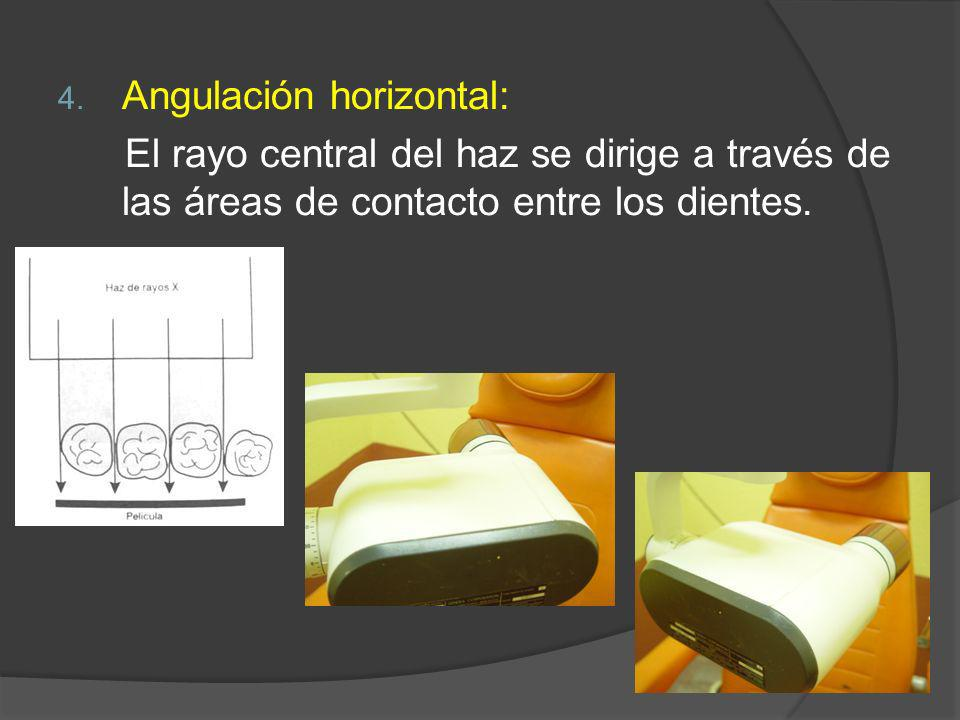 Angulación horizontal: