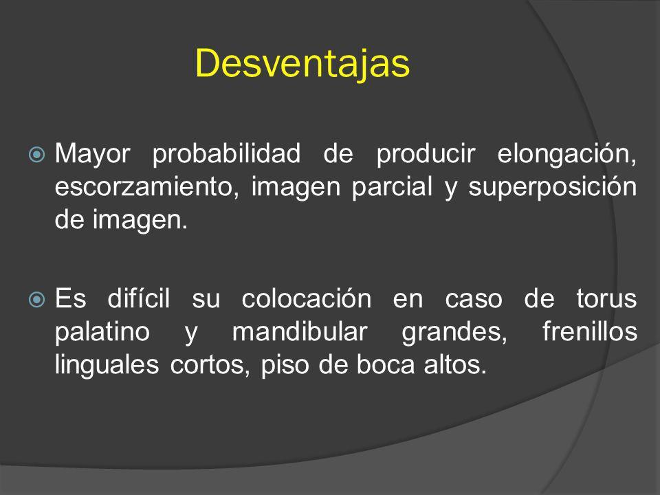 Desventajas Mayor probabilidad de producir elongación, escorzamiento, imagen parcial y superposición de imagen.
