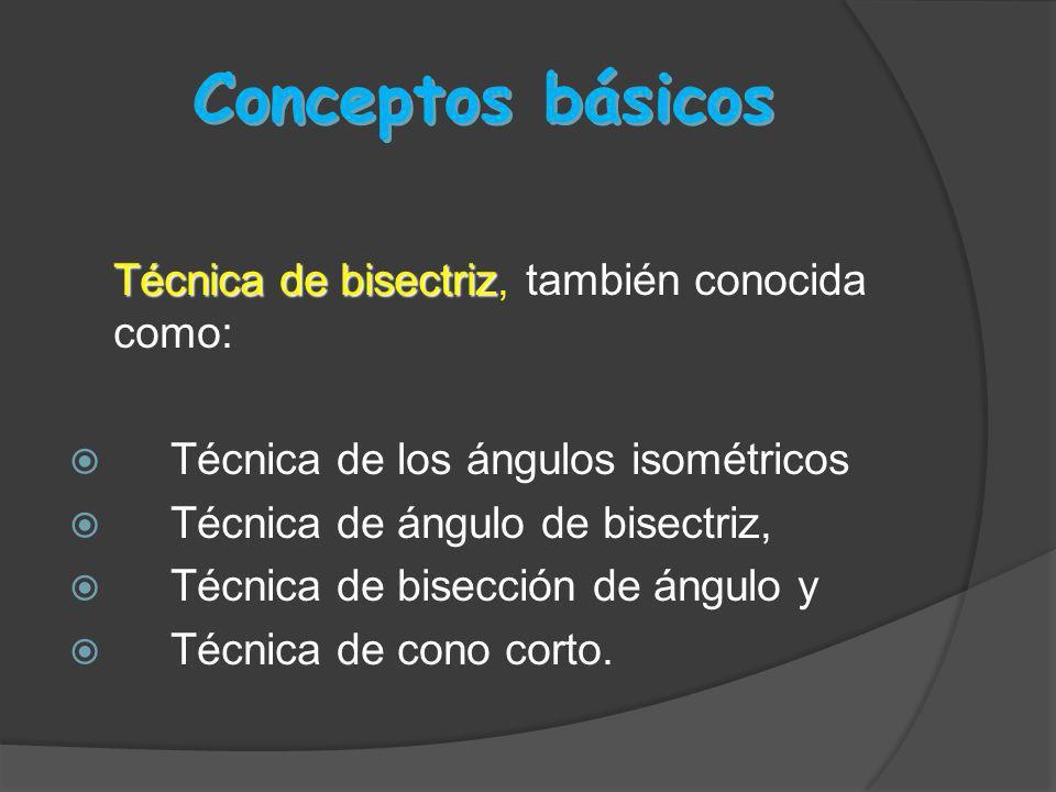 Conceptos básicos Técnica de bisectriz, también conocida como: