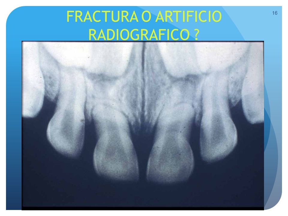 FRACTURA O ARTIFICIO RADIOGRAFICO