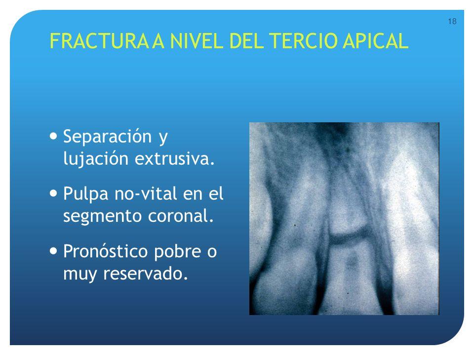 FRACTURA A NIVEL DEL TERCIO APICAL