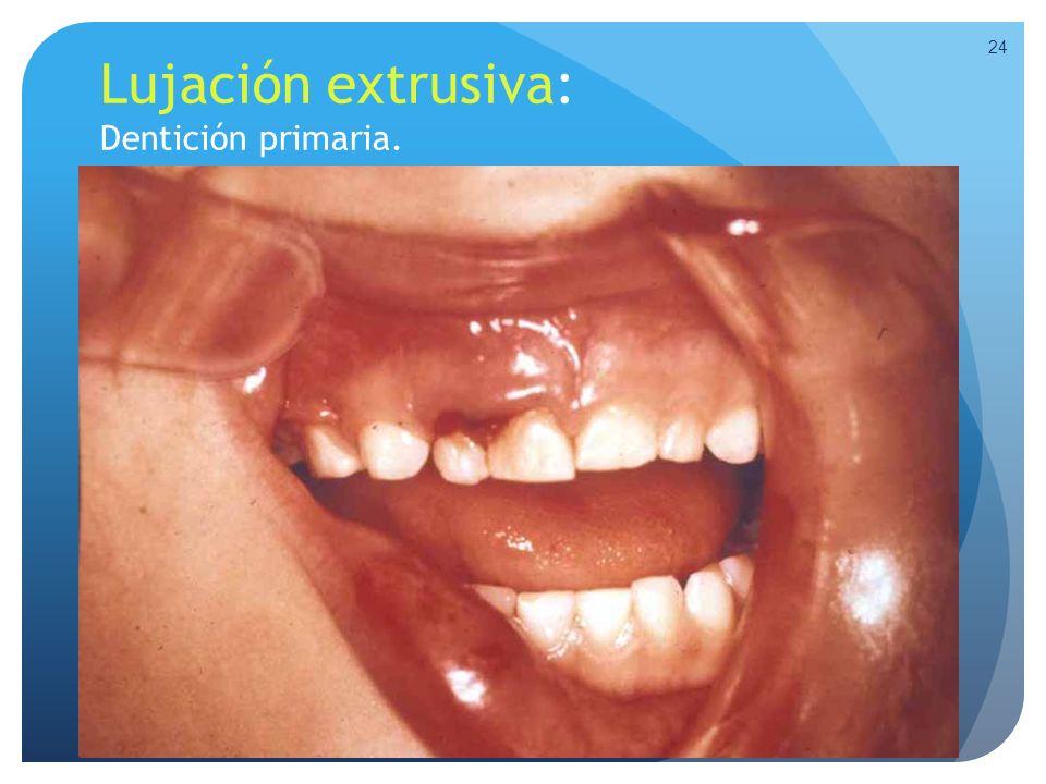 Lujación extrusiva: Dentición primaria.