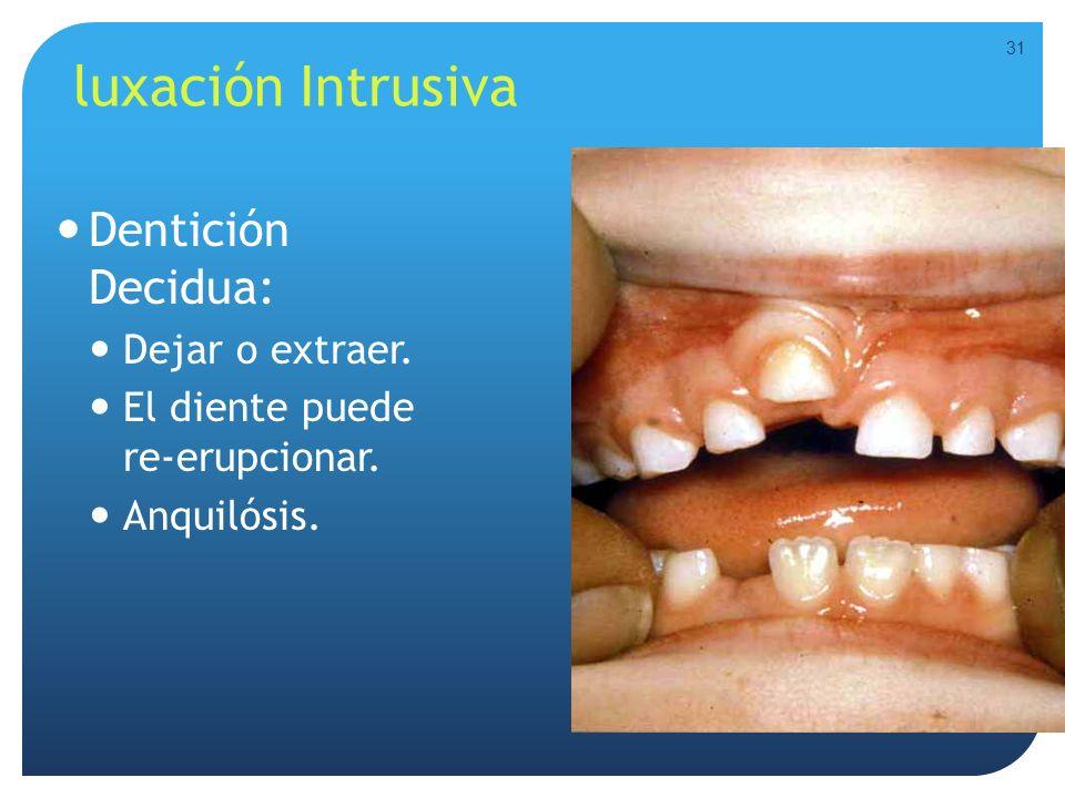 luxación Intrusiva Dentición Decidua: Dejar o extraer.