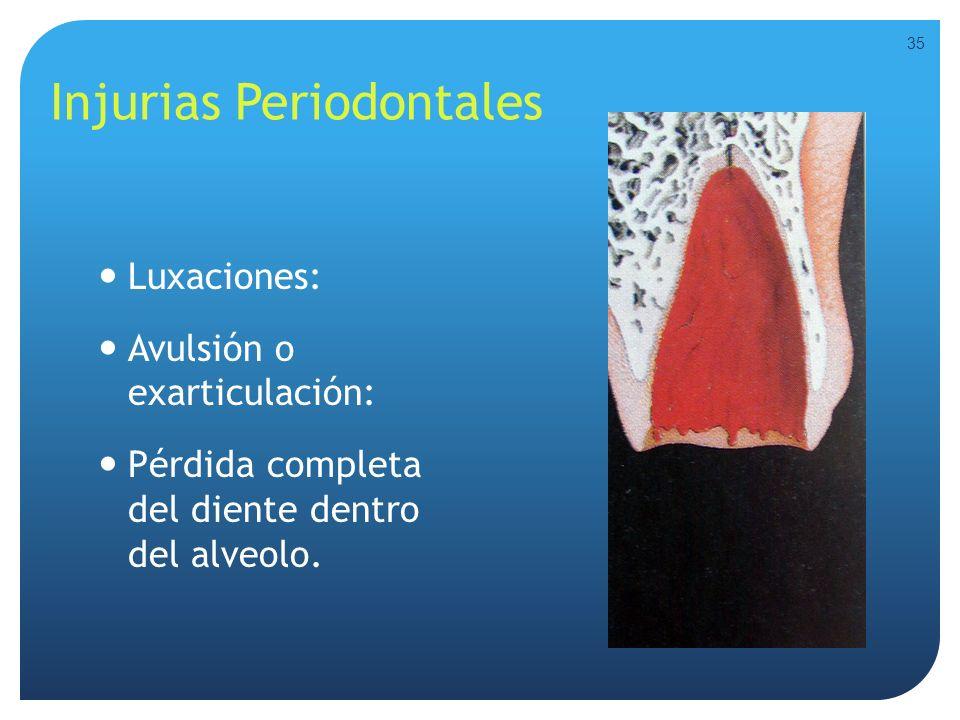 Injurias Periodontales