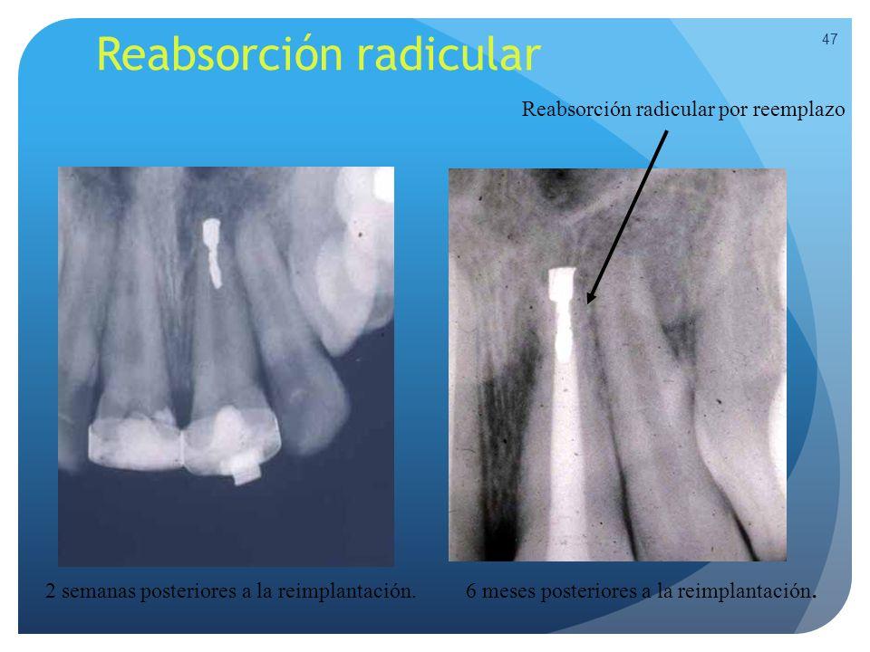 Reabsorción radicular