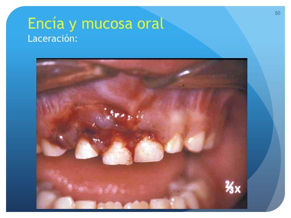 Encía y mucosa oral Laceración: