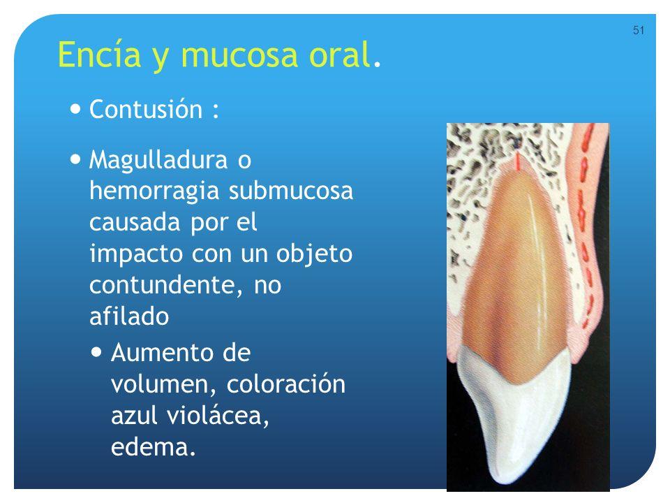 Encía y mucosa oral. Contusión :