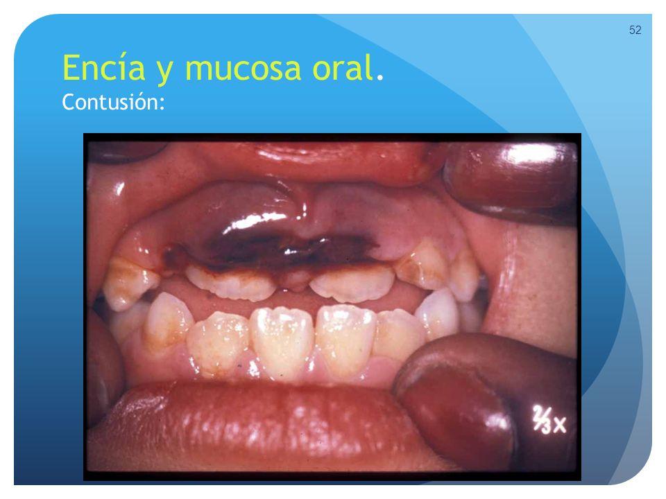 Encía y mucosa oral. Contusión: