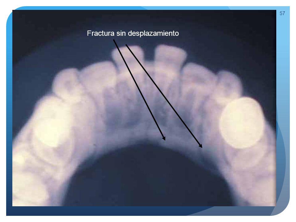 Fractura a través del espacio del incisivo lateral