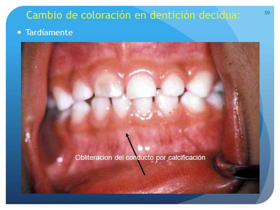 Cambio de coloración en dentición decidua: