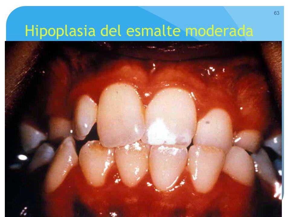 Hipoplasia del esmalte moderada