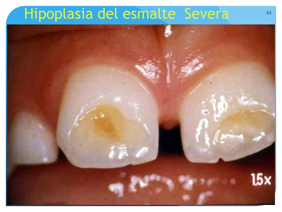 Hipoplasia del esmalte Severa