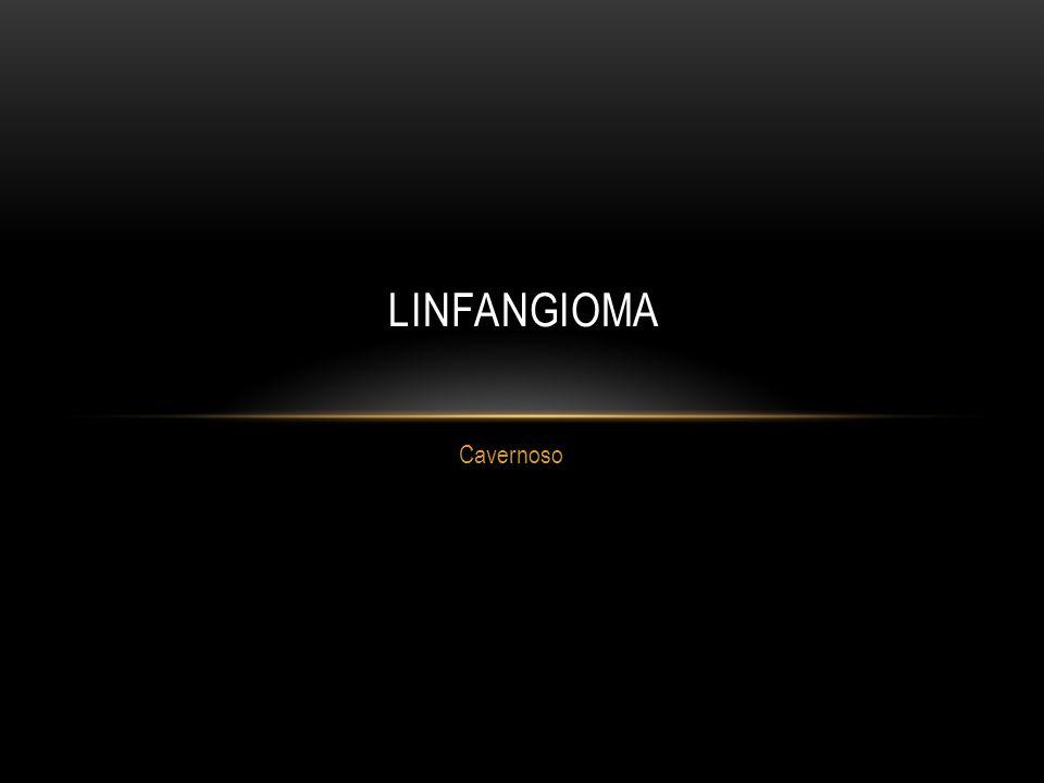 linfangioma Cavernoso