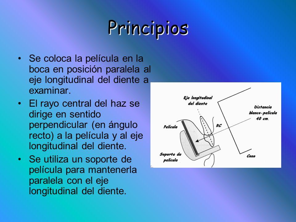 Principios Se coloca la película en la boca en posición paralela al eje longitudinal del diente a examinar.