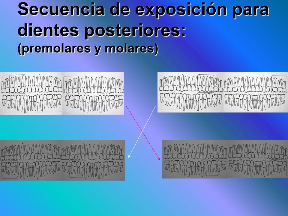 Secuencia de exposición para dientes posteriores: (premolares y molares)