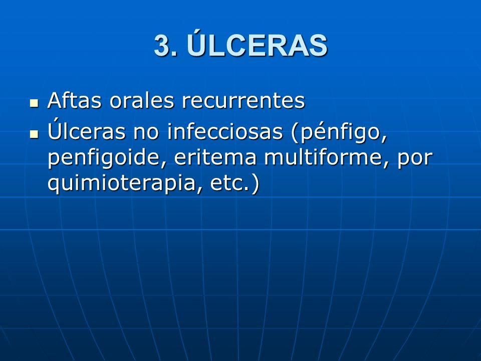 3. ÚLCERAS Aftas orales recurrentes