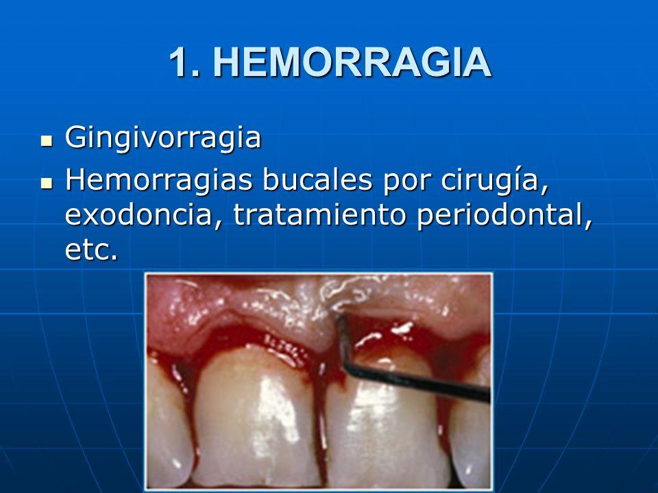 1. HEMORRAGIA Gingivorragia