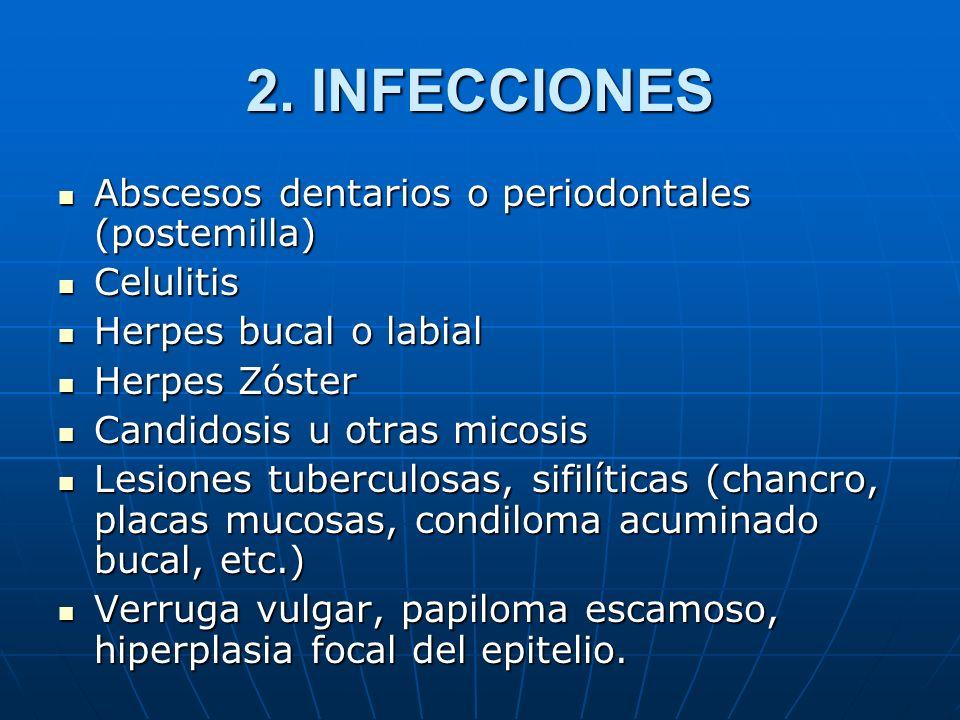 2. INFECCIONES Abscesos dentarios o periodontales (postemilla)