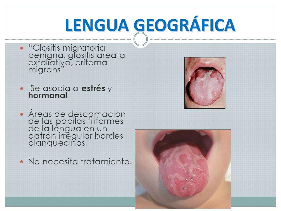 LENGUA GEOGRÁFICA Glositis migratoria benigna, glositis areata exfoliativa, eritema migrans Se asocia a estrés y hormonal.
