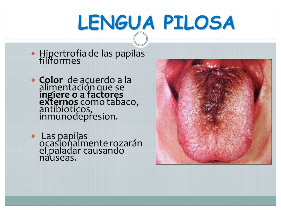LENGUA PILOSA Hipertrofia de las papilas filiformes