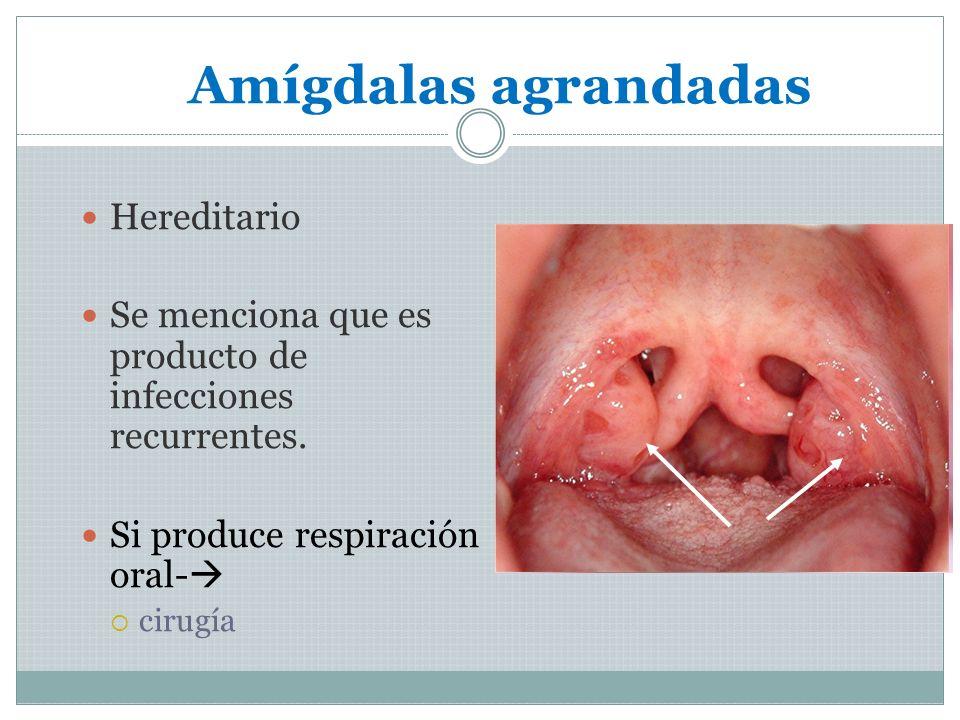 Amígdalas agrandadas Hereditario