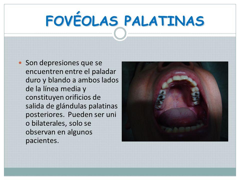 FOVÉOLAS PALATINAS