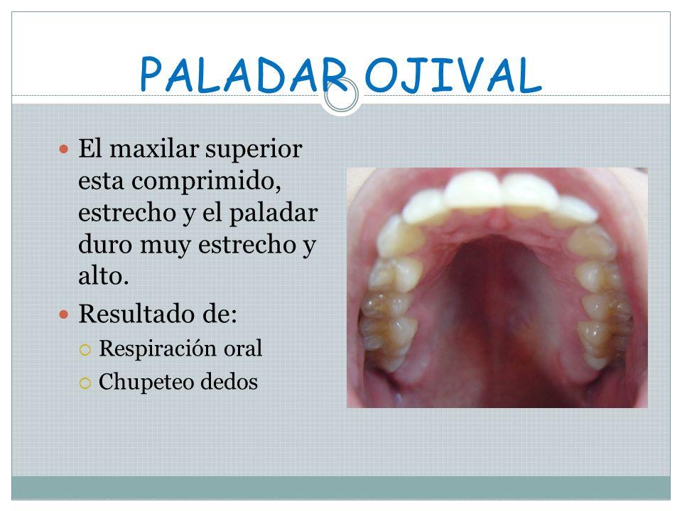 PALADAR OJIVALEl maxilar superior esta comprimido, estrecho y el paladar duro muy estrecho y alto. Resultado de: