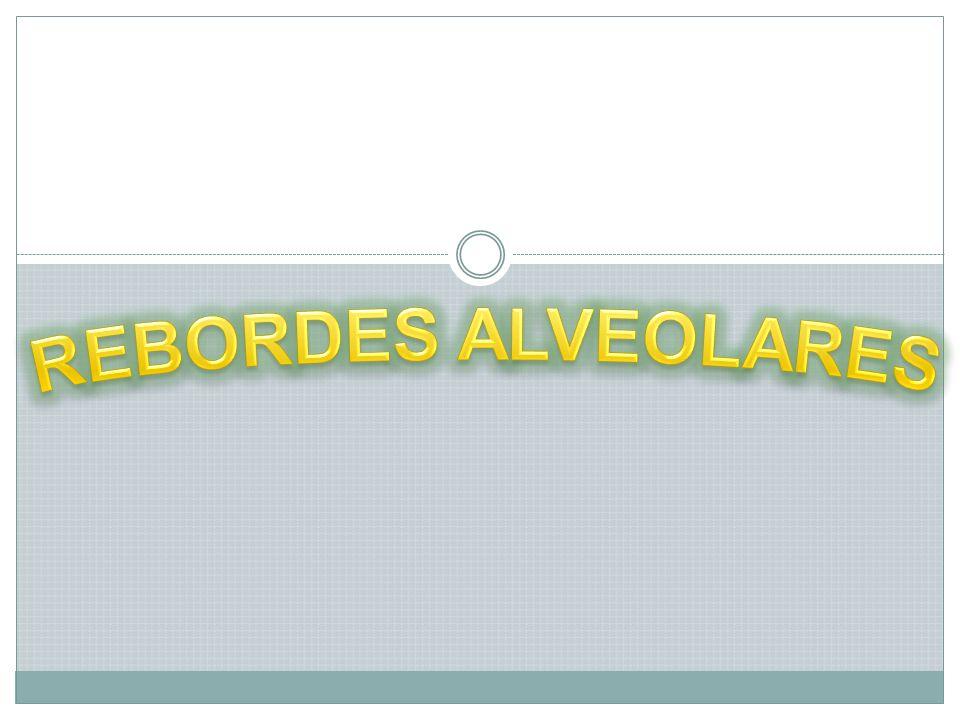 REBORDES ALVEOLARES