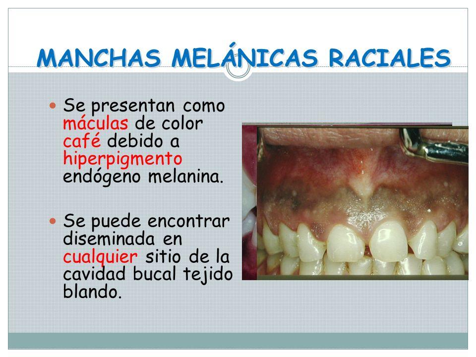 MANCHAS MELÁNICAS RACIALES