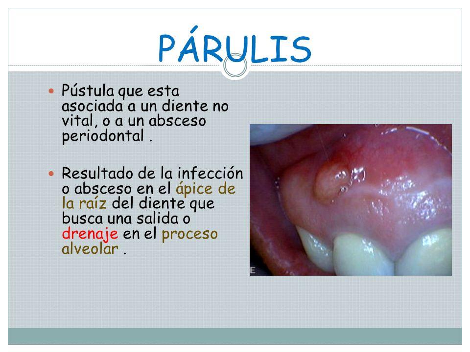 PÁRULIS Pústula que esta asociada a un diente no vital, o a un absceso periodontal .