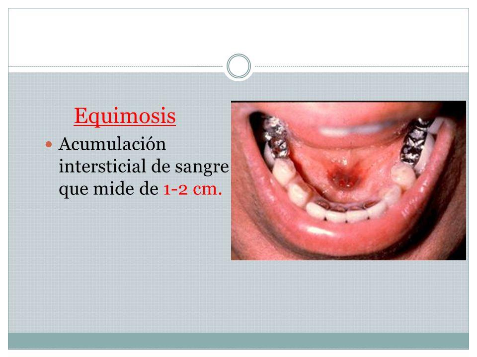 Equimosis Acumulación intersticial de sangre que mide de 1-2 cm.
