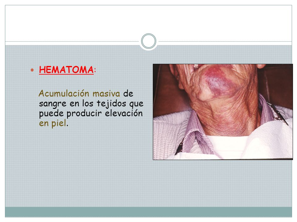 HEMATOMA: Acumulación masiva de sangre en los tejidos que puede producir elevación en piel.