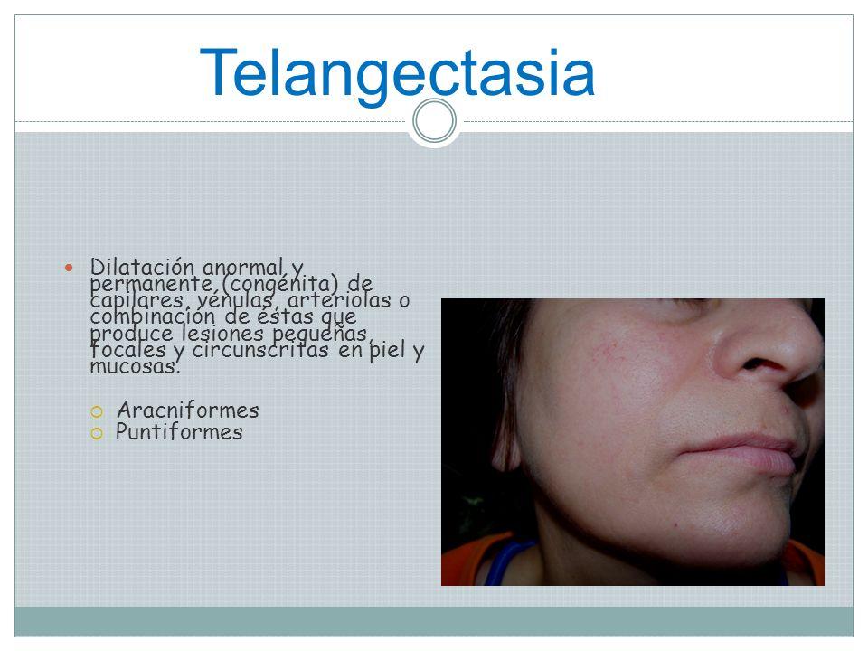 Telangectasia
