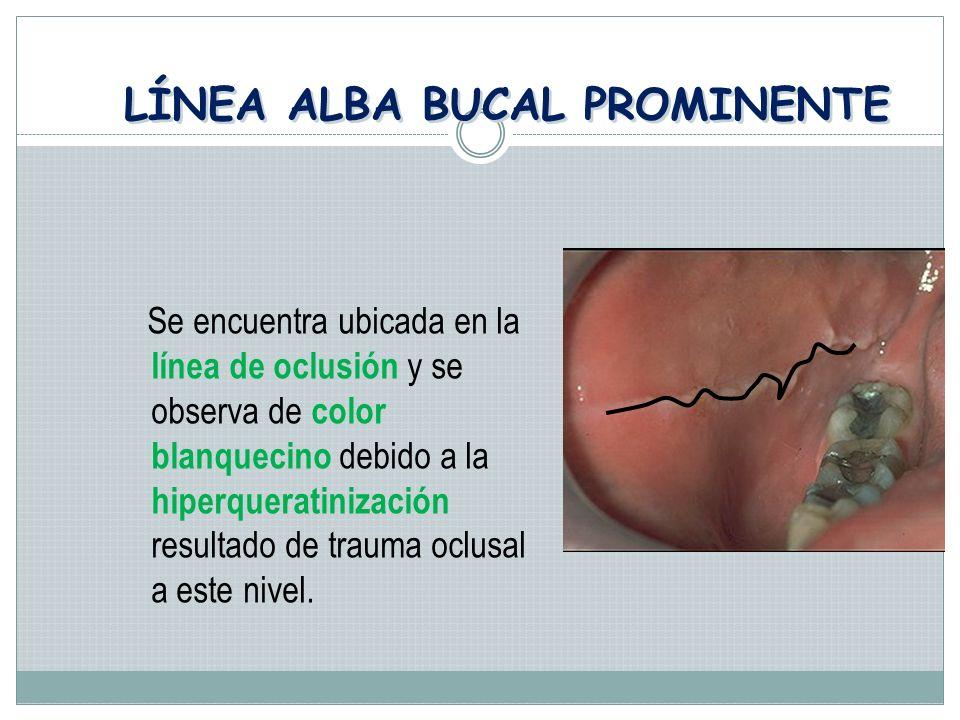 LÍNEA ALBA BUCAL PROMINENTE