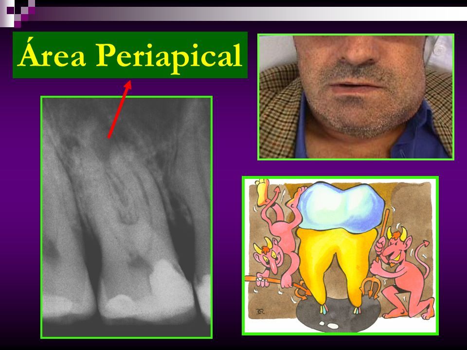 Área Periapical