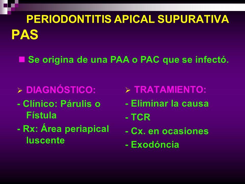 PERIODONTITIS APICAL SUPURATIVA PAS