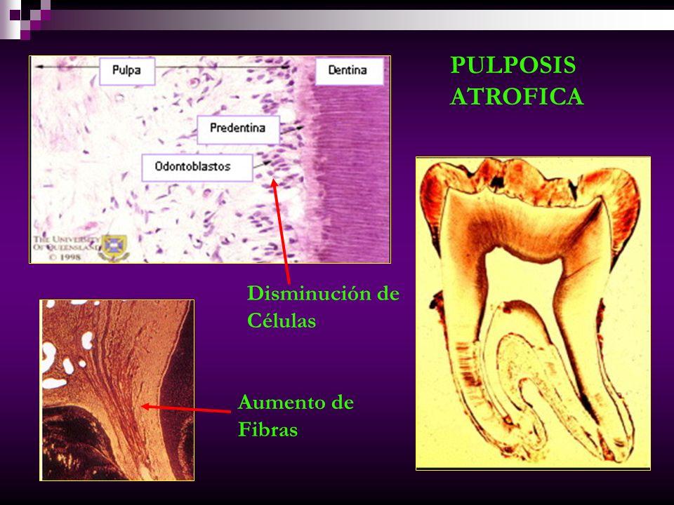 PULPOSIS ATROFICA Disminución de Células Aumento de Fibras