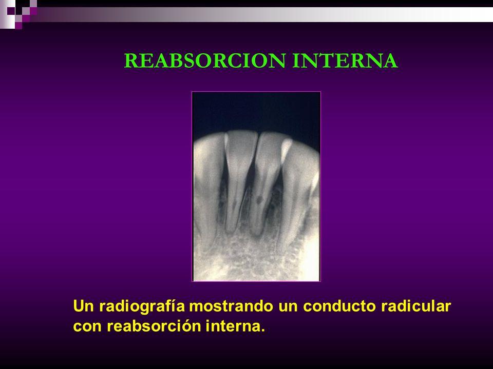 REABSORCION INTERNA Un radiografía mostrando un conducto radicular con reabsorción interna.