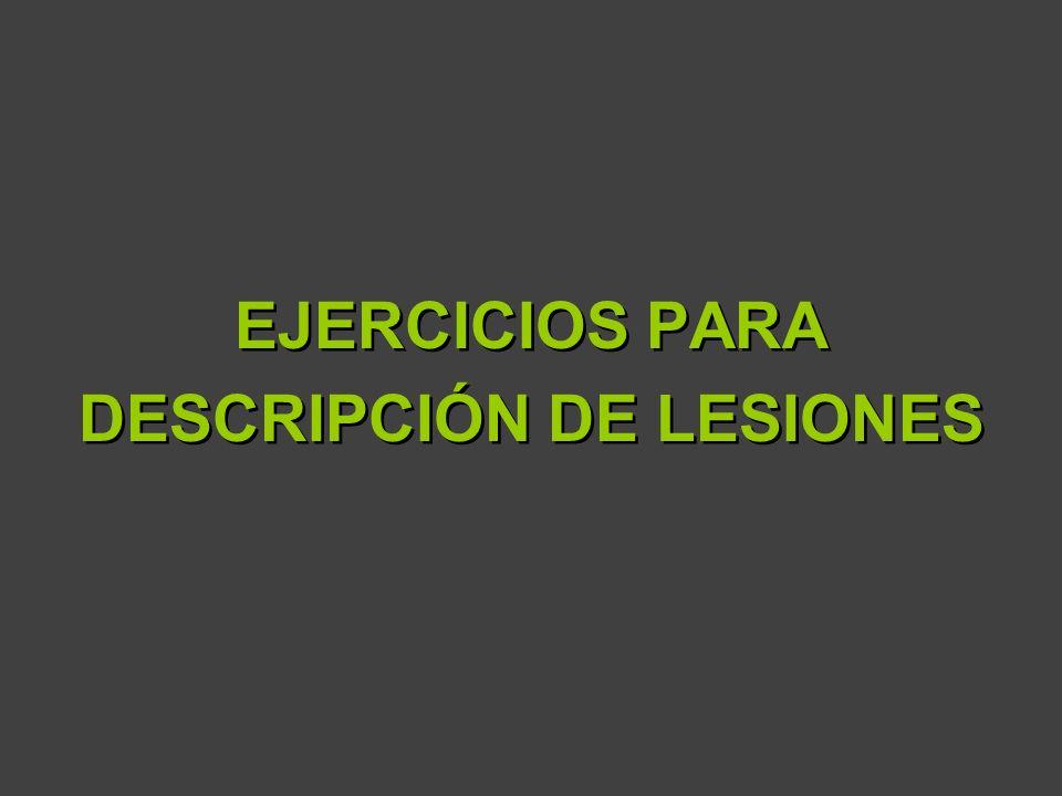 DESCRIPCIÓN DE LESIONES