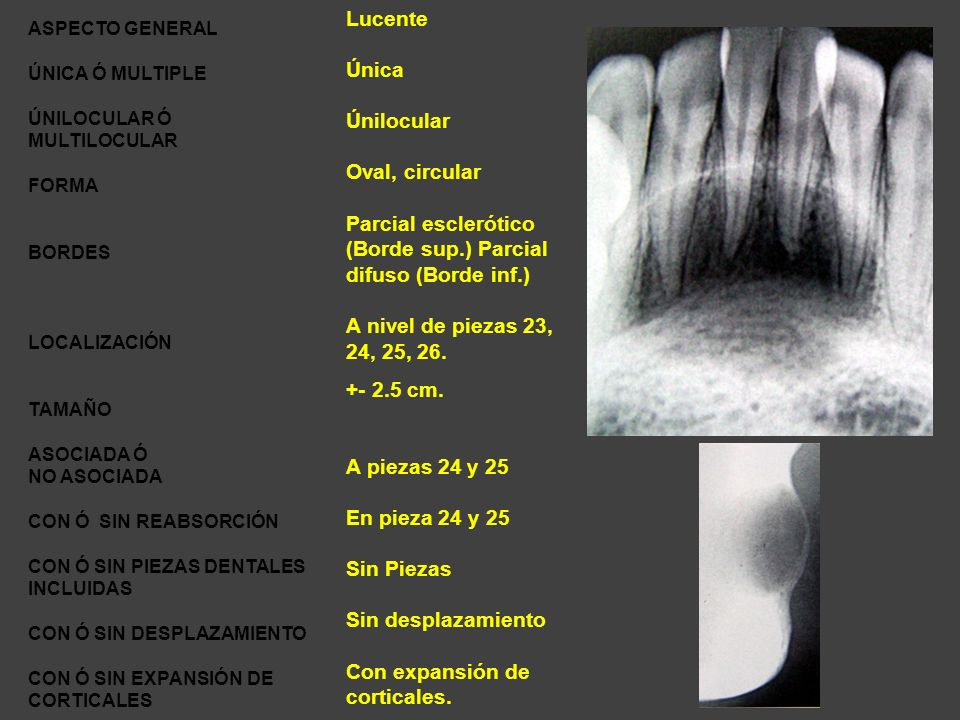 (Borde sup.) Parcial difuso (Borde inf.)