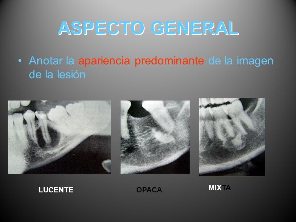 ASPECTO GENERAL Anotar la apariencia predominante de la imagen de la lesión MIXTA LUCENTE OPACA