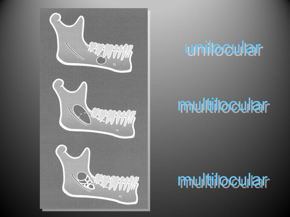 unilocular multilocular multilocular