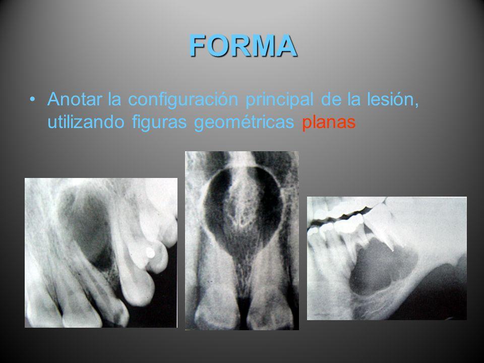 FORMA Anotar la configuración principal de la lesión, utilizando figuras geométricas planas
