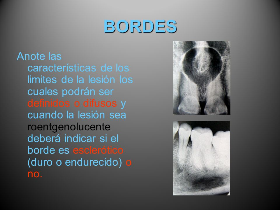 BORDES
