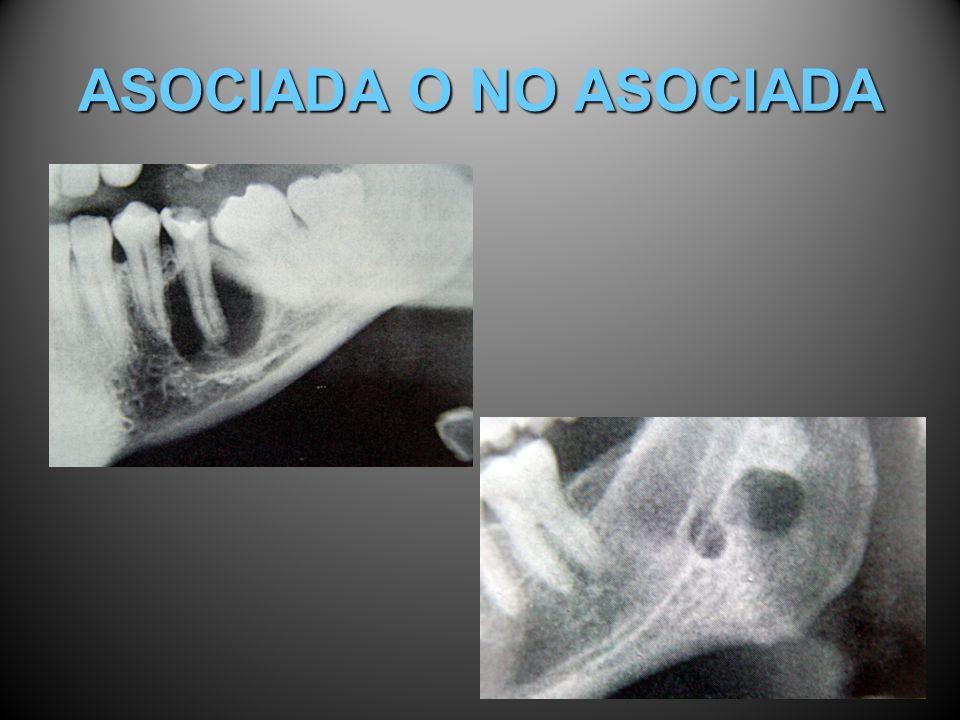 ASOCIADA O NO ASOCIADA
