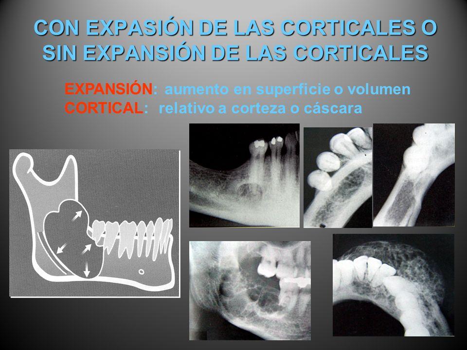 CON EXPASIÓN DE LAS CORTICALES O SIN EXPANSIÓN DE LAS CORTICALES