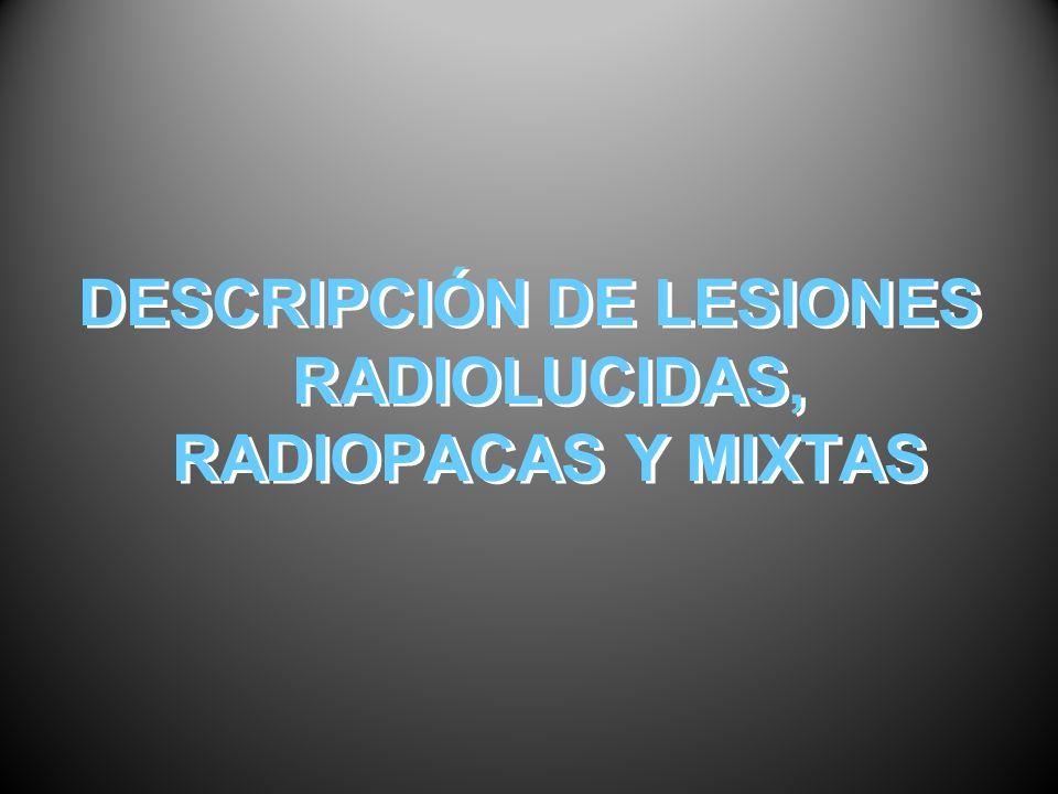 DESCRIPCIÓN DE LESIONES RADIOLUCIDAS, RADIOPACAS Y MIXTAS