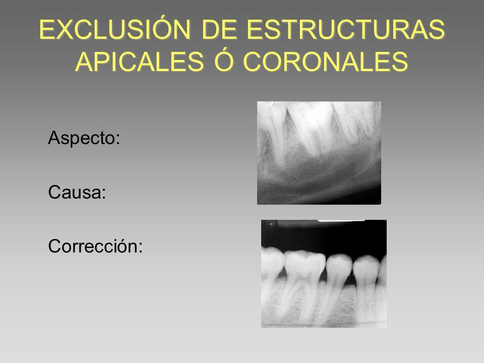 EXCLUSIÓN DE ESTRUCTURAS APICALES Ó CORONALES