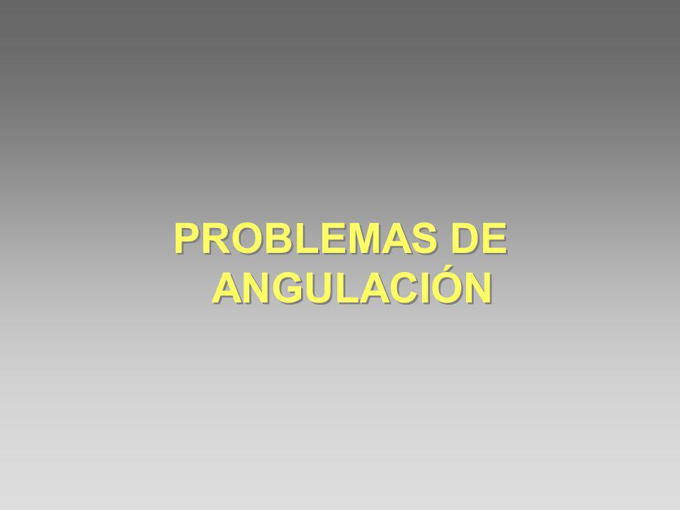 PROBLEMAS DE ANGULACIÓN