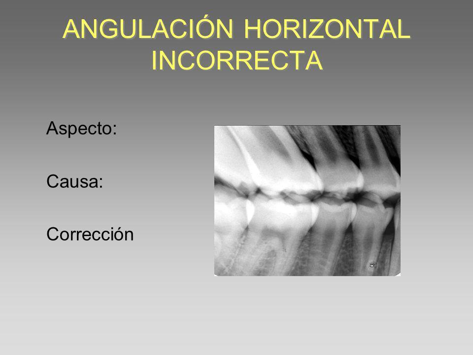 ANGULACIÓN HORIZONTAL INCORRECTA